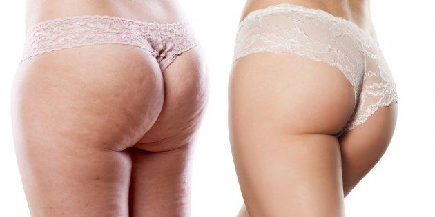 cellulite bekämpfen nach schwangerschaft